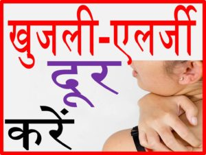 खुजली या एलर्जी दूर करने के घरेलू उपचार upcharnuskhe