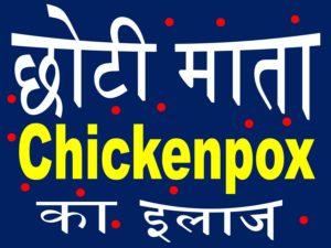 choti mata chickenpox upcharnuskhe